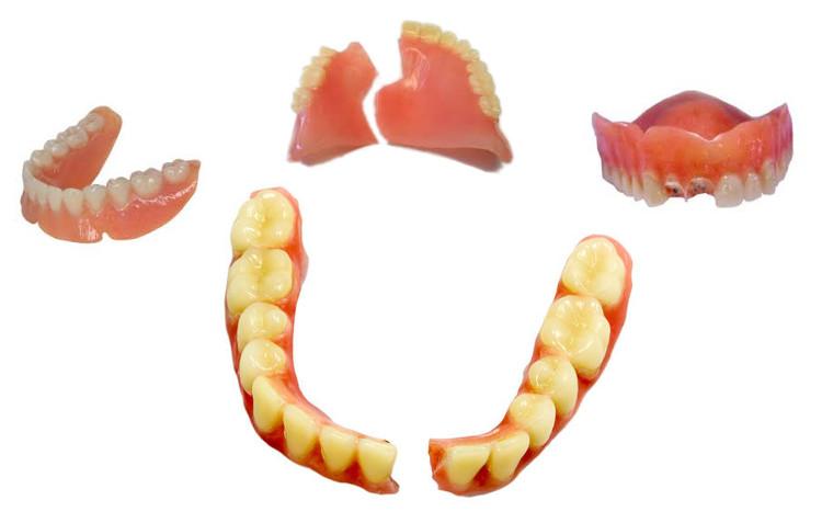 pontypridd-dental-lab-pontypridd-denture-repair-dentures1